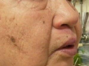 顔面擦過傷 2週間後